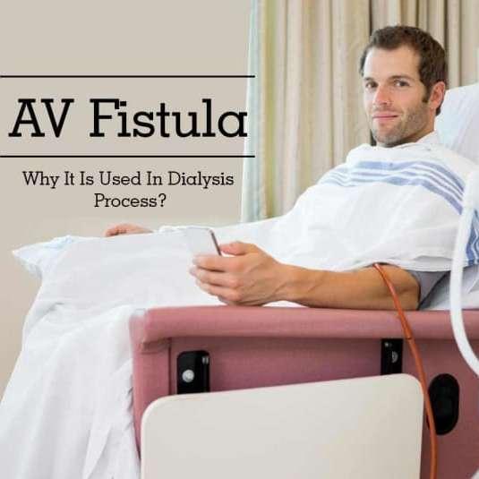 AV Fistula or Arteriovenous Fistula