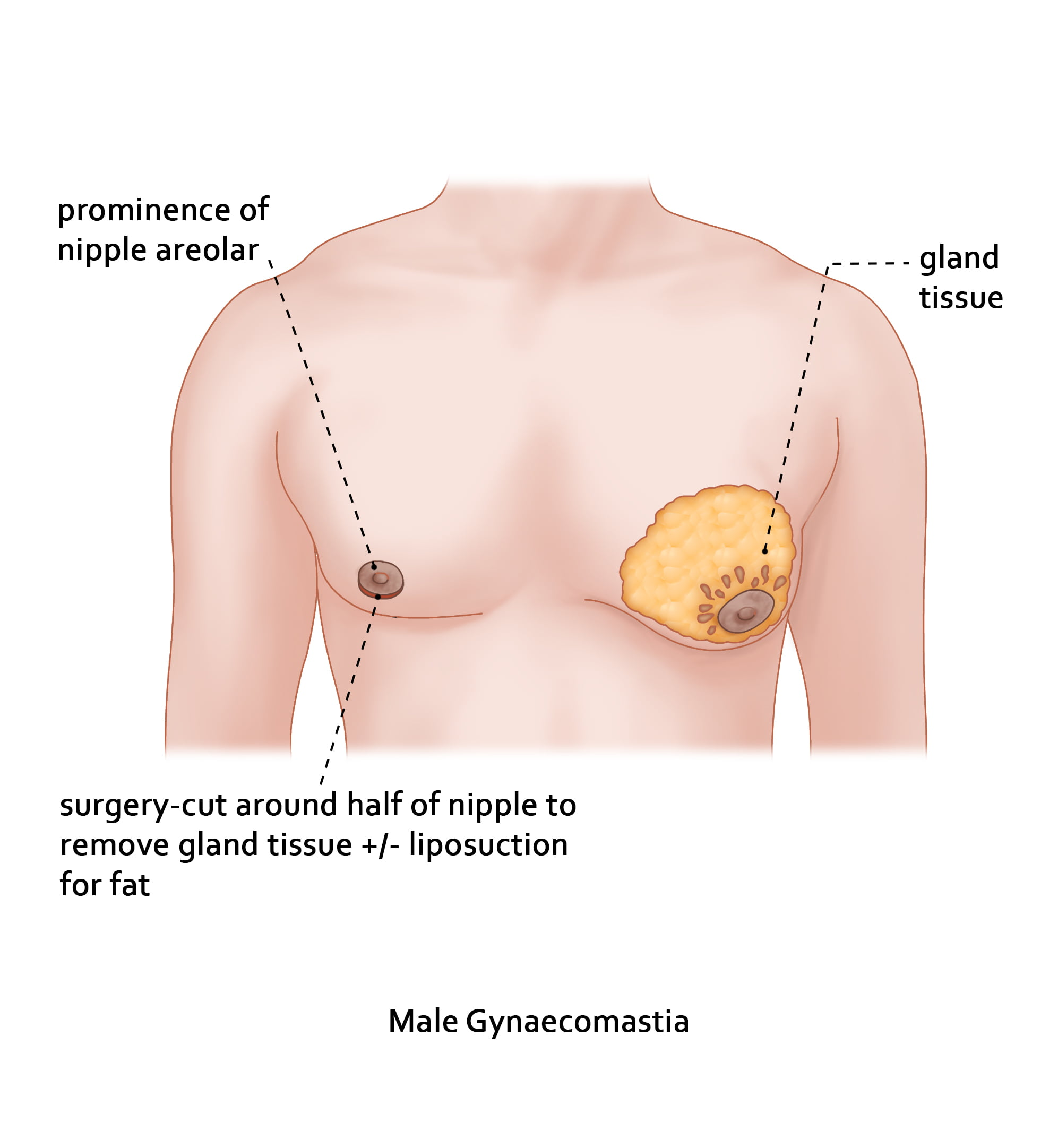 Medical management of Gynaecomastia.