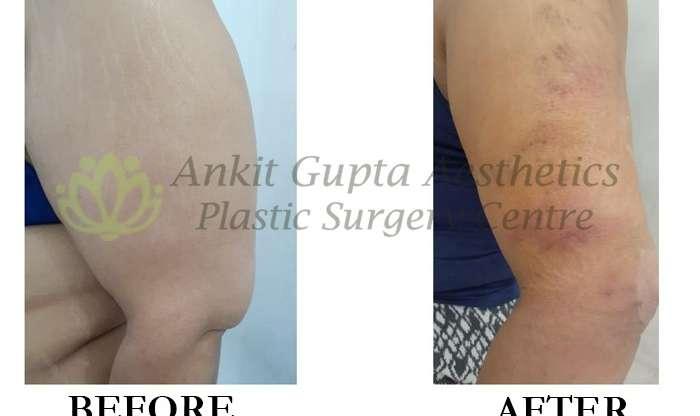 Arm Liposuction in Delhi