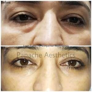 blepharoplasty before after